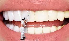 بلیچینگ دندان/فواید و عوارض سفید کردن دندان ها به این روش