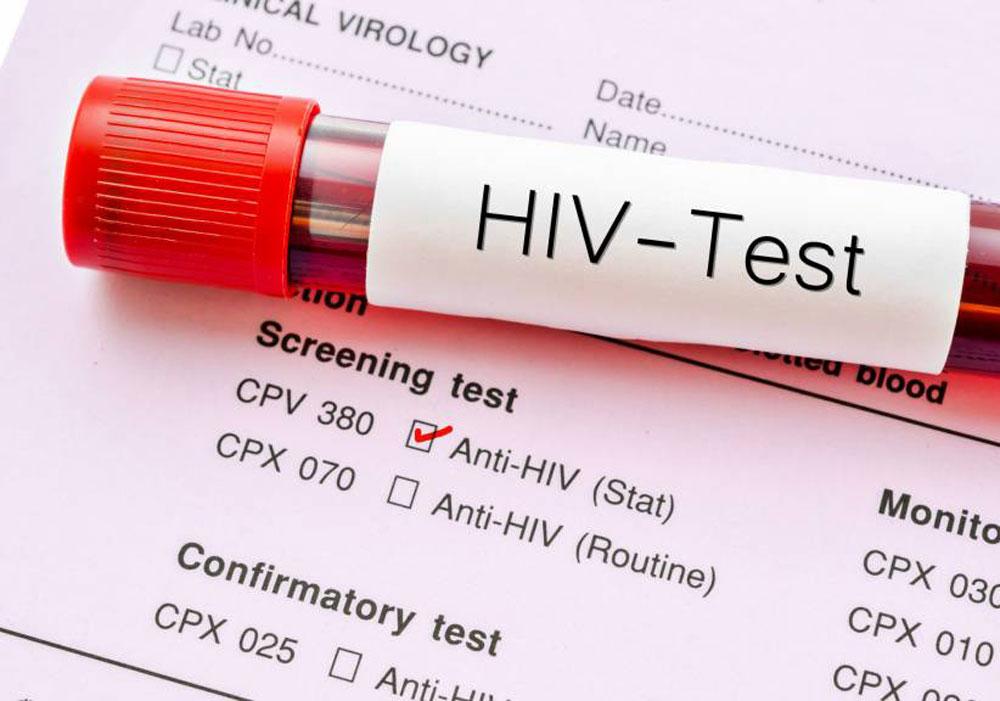 آزمایشهای HIV
