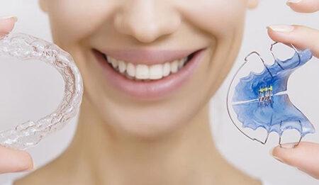 ارتودنسی دندان، انواع و قیمت سال ۹۹