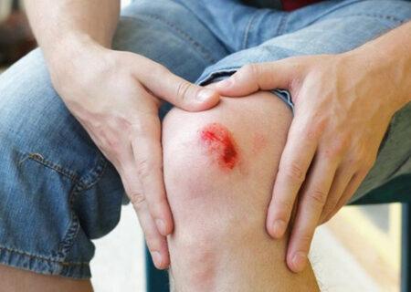 ۹ علامت عفونت و آلودگی زخم که باید جدی بگیرید
