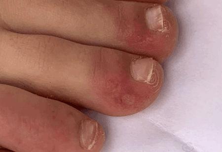 آیا التهابات پوستی با بیماری کووید-۱۹ مرتبط هستند؟