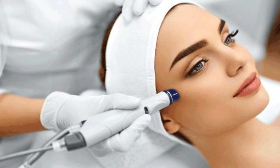 درمان جای جوش با لیزر