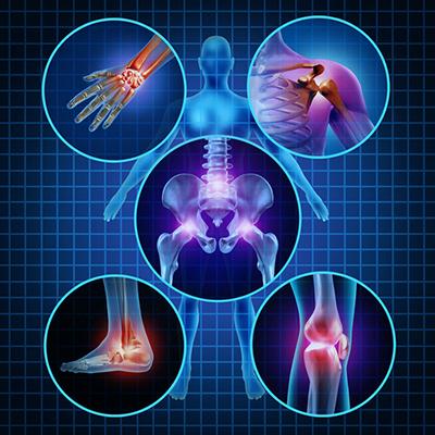 دردهای مفصلی