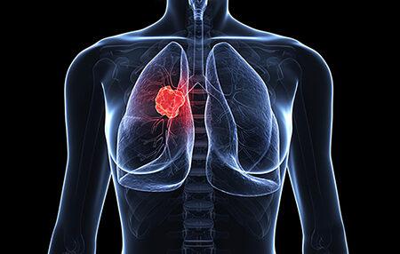 سرطان ریه یکی از کشنده ترین سرطان ها
