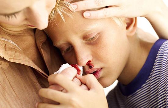 بیماری هموفیلی چیست؟
