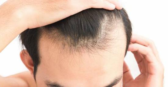 چرا ریزش مو میگیریم؟