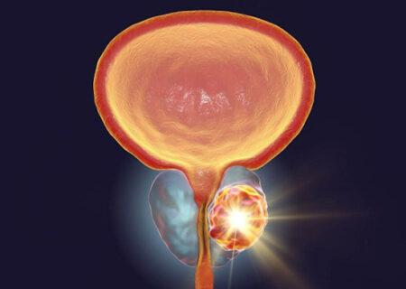 سرطان پروستات/هشدار به مردان