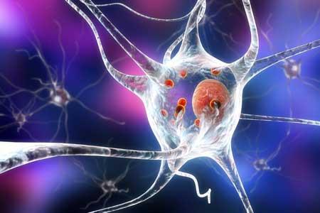 درمان پارکینسون و عملکرد آلفا سینوکلئین