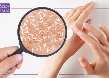 پری بیوتیکها برای چه پوست هایی؟
