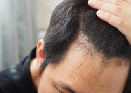 کچلی وریزش مو در مردان