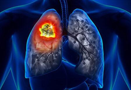 سرطان ریه علائم آن را بیشتر بشناسید