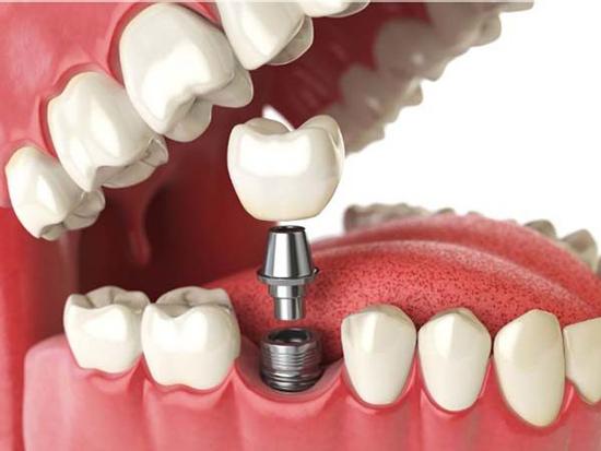 آشنایی با انواع ایمپلنت دندان