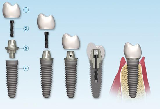 انواع ایمپلنت دندان و هزینهی آنها