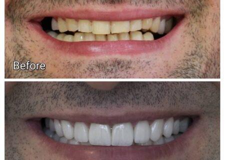 لمینت دندان، قیمت سال ۹۹ و جدیدترین انواع آن +ویدئو