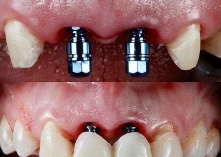 ایمپلنت دندان چیست؟ مزایا، معایب و هزینه ایمپلنت
