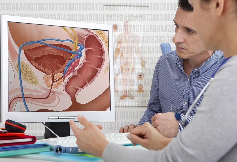 سرطان پروستات و درمان گیاهی