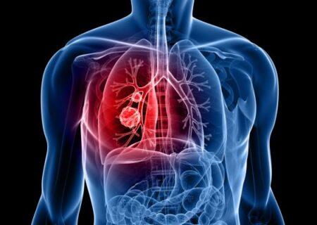 تومورهای کارسینوئیدی ریه/ علائم و راه های درمانی آن