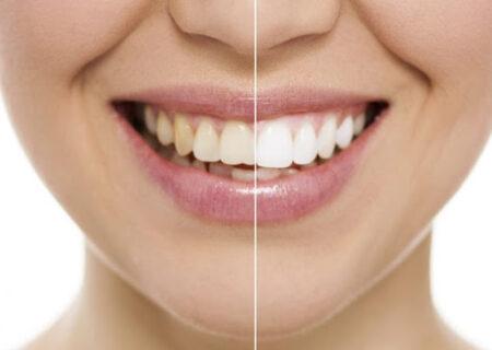 سفید کردن دندان/چگونه دندان های سفید و براقی داشته باشیم؟