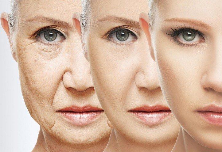 افزایش سن