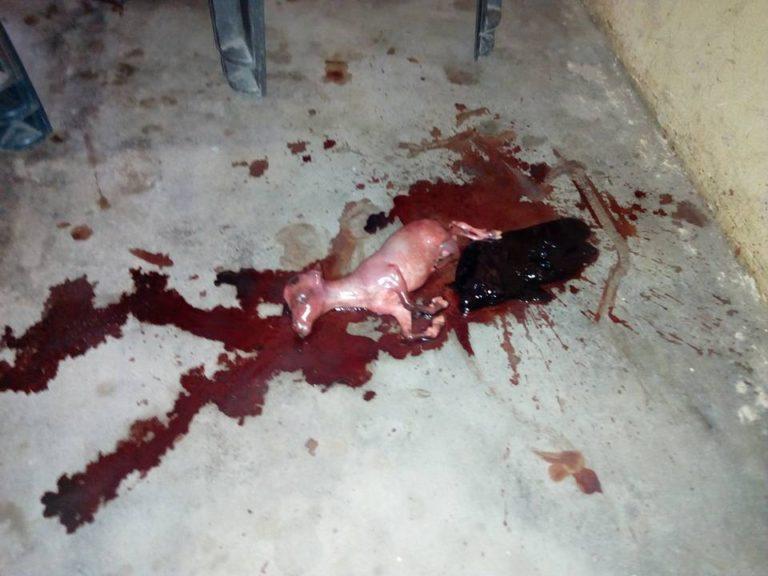 بارداری زن نیجریه از یک بز(سکس با حیوانات)