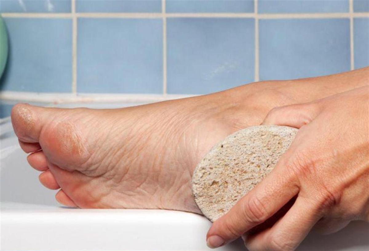 ترفندها/سنگ پا برای افراد دیابتی