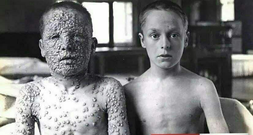 معجزه واکسن/ عکس حیرت آور از تفاوت پسری که واکسن زده و پسری که نزده!